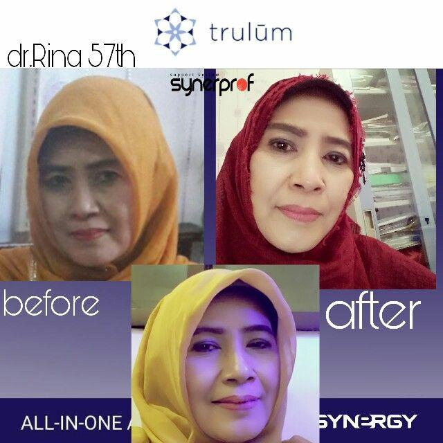 Jual Trulum All In One Ampoule Di Didohu, Manokwari WA: 08112338376
