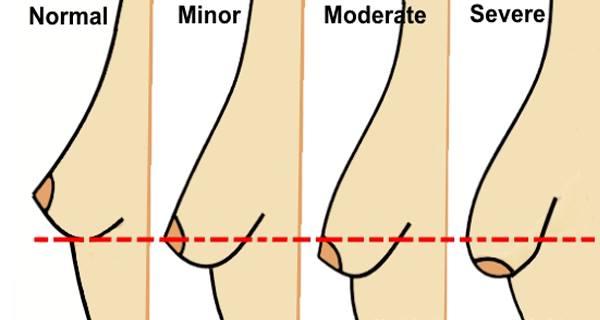 Làm cách nào nâng cấp ngực xệ thành ngực đôi mươi?
