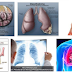 Understanding About Mesothelioma