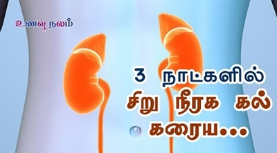 Kidney Stone | Kidney Stone Remedy | Kidney Stone Symptom | Kidney Stone Treatment
