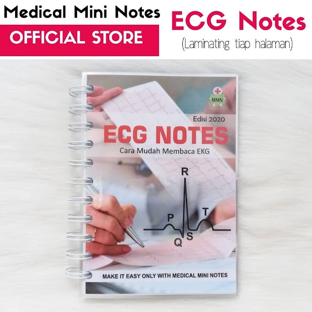 "Medical Mini Notes ""ECG Notes"" Cara Mudah Membaca EKG"