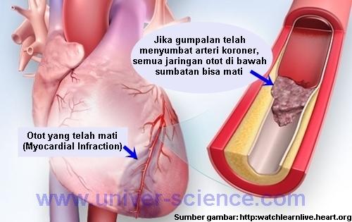 Serangan Jantung Dan Gejalanya
