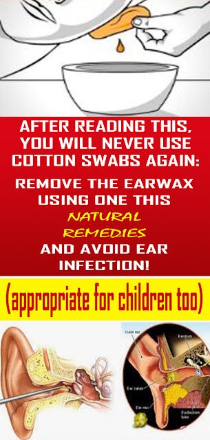 Get Rid Of The Wax In Your Ears With These Natural Remediese#NATURALREMEDIES