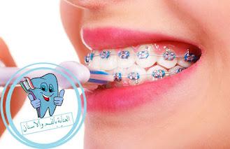الاسنان التقويم ,تقويم الاسنان ،تنظيف الاسنان ،تنظيف الاسنان مع التقويم ،طريقة تنظيف الاسنان ،كيفية تنظيف الاسنان مع التقويم ،اسنانعيادة اسنان ،علاج الاسنان ،التقويم الشفاف ،انواع التقويم ،الوان تقويم الاسنان ،تقويم الاسنان الشفاف ،انواع تقويم الاسنان ،نظافة الاسنان ،تقويم اسنان زينه ،تقويم الاسنان قبل وبعد ،تنظيف اللثة ،عيوب تقويم الاسنان ،غسل الاسنان ،صحة الاسنان ،سلك الاسنان ،التقويم الثابت ،التقويم الشفاف ،التقويم المتحرك ،تقويم شفاف ،تقويم الاسنان المتحرك ،تجربتي مع التقويم الشفاف ،التقويم المتحرك الشفاف ،التقويم الشفاف المتحرك ،التقويم الشفاف للاسنان ،تقويم شفاف للاسنان ،التقويم الثابت الداخلي ،تقويم اسنان متحرك ،التقويم الثابت الداخلي كم مدته ،مثبت التقويم الشفاف رالتقويم الشفاف الثابت ،شكل التقويم الشفاف ،التقويم الداخلي الثابت ،تقويم الاسنان الثابت ،طريقة تنظيف التقويم المتحرك الشفاف ،تقويم ثابت ،تقويم انفزلاين تجربتي ،الرتينر الشفاف ،تقويم شفاف ثابت ،التقويم المتحرك للاسنان ،تجربتي مع التقويم المتحرك ،تقويم الاسنان المتحرك للاطفال ،تقويم متحرك شفاف ،اسعار تقويم الاسنان الشفاف ،تقويم شفاف متحرك ،التقويم الاسنان الشفاف ،التقويم المخفي الشفاف ،تقويم متحرك للأسنان ،تقويم الاسنان الخزفي ،ما هو التقويم الشفاف ،تقويم أسنان شفاف ،التقويم الشفاف قبل وبعد ،تنظيف التقويم الشفاف الثابت ،تقويم الاسنان الشفاف المتحرك