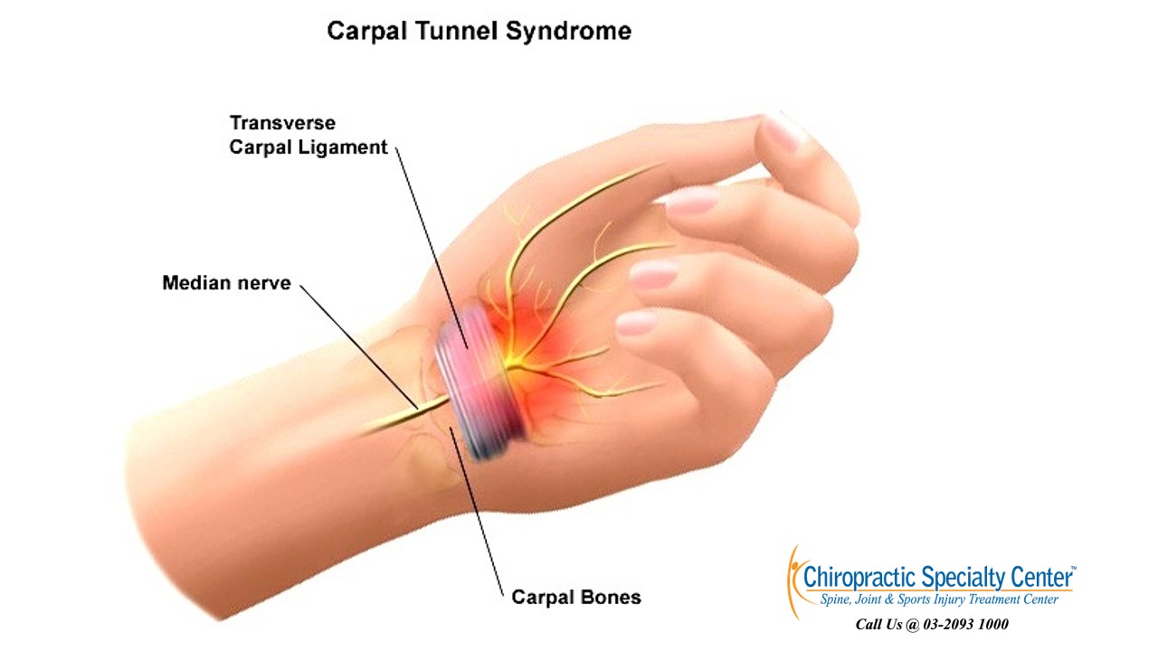 how to get carpal tunnel syndrome