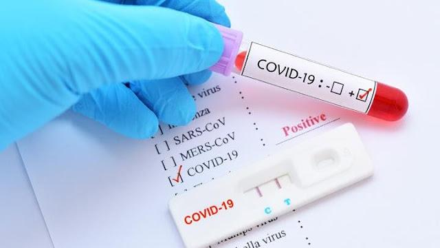 7 θετικά rapid tests σε Πλαταριά και Ηγουμενίτσα