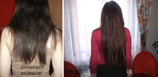 szybki wzrost włosów tabletki