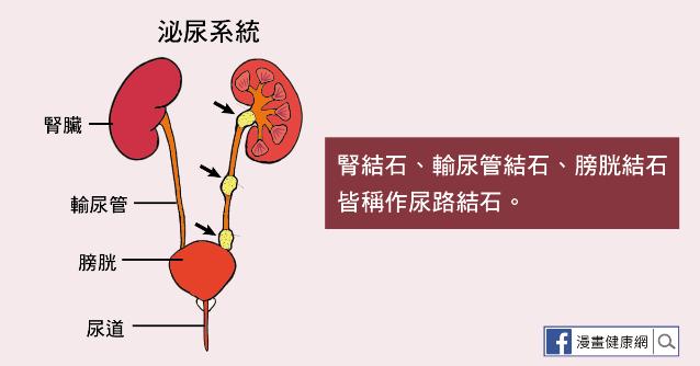結石 尿道