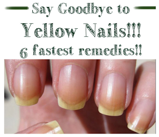 Say Goodbye to Yellow Nails – 6 fastest remedies