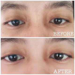 Eye serum untuk mengatasi mata panda dark circle
