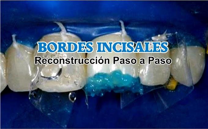 BORDES INCISALES: Reconstrucción paso a paso
