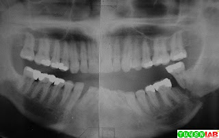 Unfavorable Mandibular Fracture