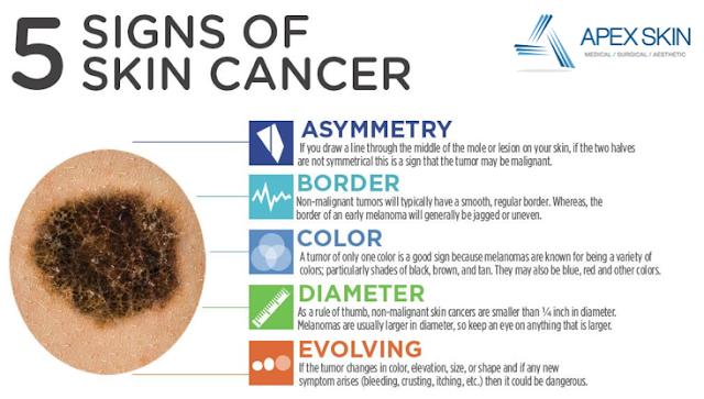 Informasi Tentang Kanker Kulit - SKCK