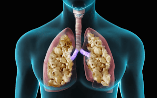 Rare Diseases That Affect Adolescents in Canada Due to Vape, Lung Popcorn. 1