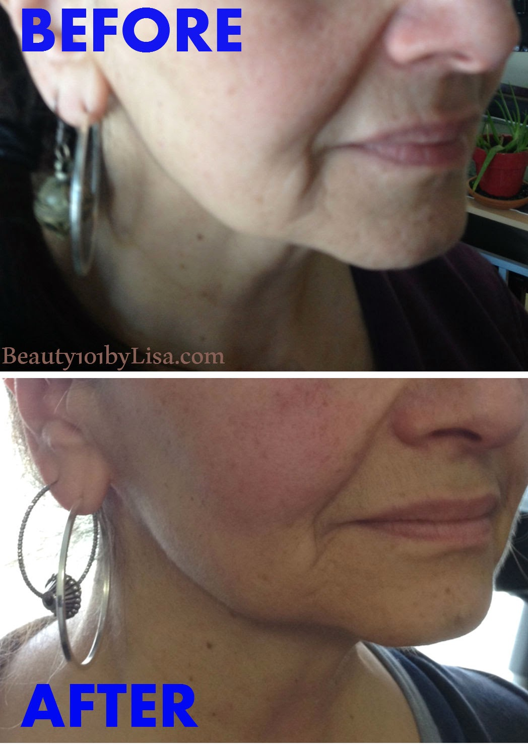 http://www.beauty101bylisa.com/2014/04/botox-in-bottle-before-after-results.html