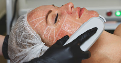 Hifu facial treatment Pros and Cons