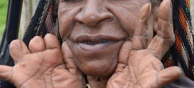 Budaya Potong jari-Papua