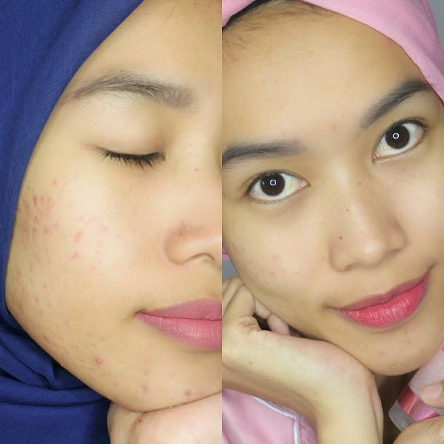 Before-After setelah menggunakan Garnier Sakura White Series