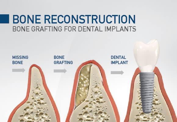 Bone Grafting, Sinus Grafting And Gum Grafting Procedure