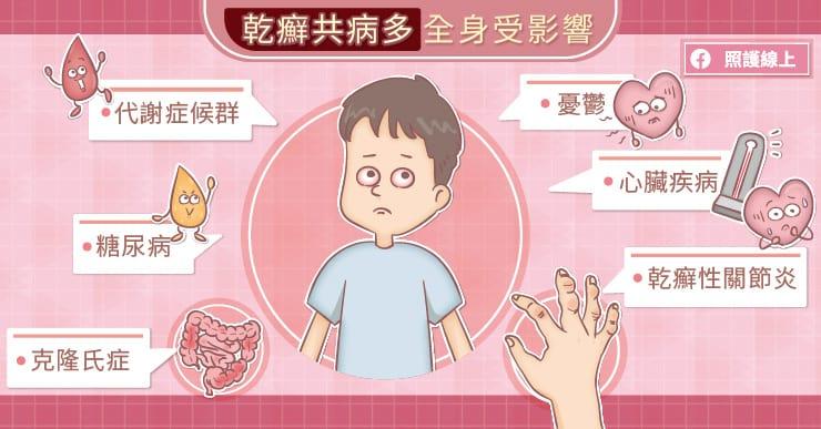 乾癬共病多,全身受影響