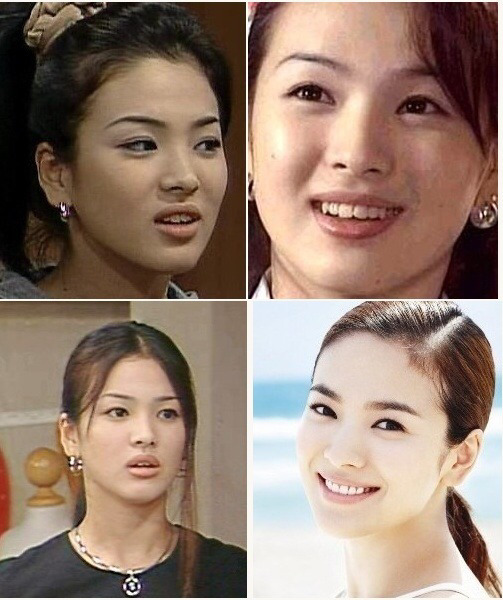Celebrities before and after getting their teeth fixed ...