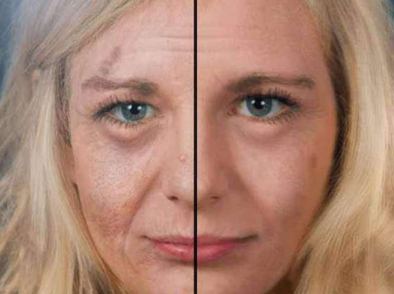 The Effects Of Aging On The Skin - Skin Protection