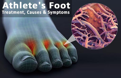 Athlete's Foot Treatment, Causes & Symptoms
