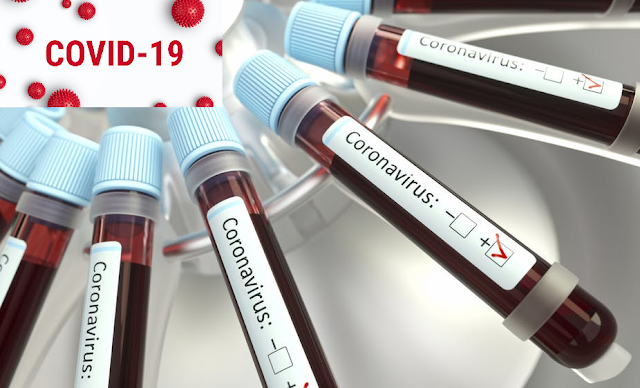 Study ties blood type to COVID-19