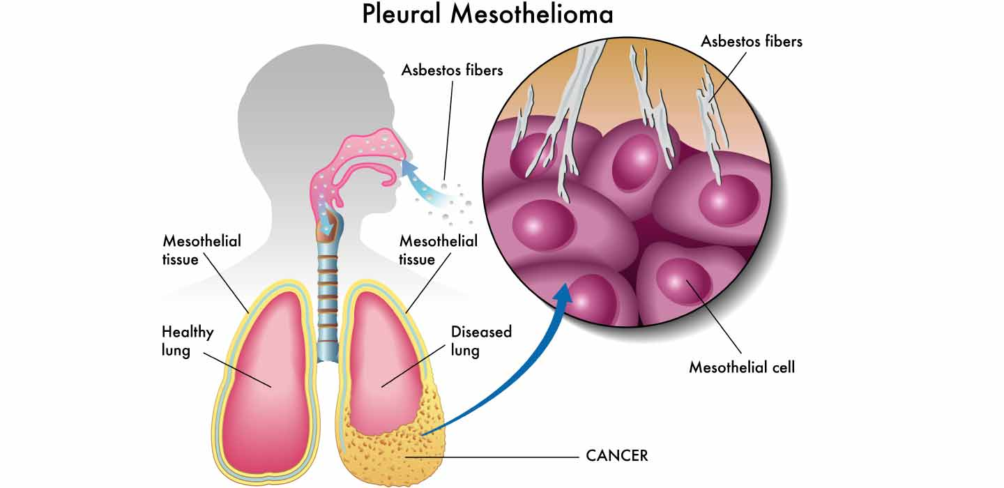 top 2 reasons of development of asbestos cancer asbestos and lungduring the research, it was established by the national cancer institute that the level of asbestos exposure should be minimized to check the disorder under