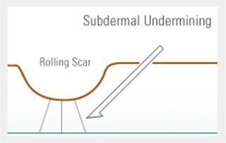 รักษาหลุมสิวด้วย Subcision