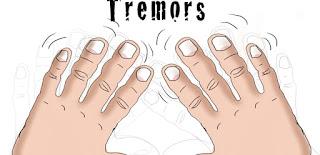 physiological-tremofer,www.healthnote25.com