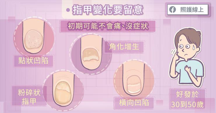乾癬性關節炎初期常會有哪些症狀