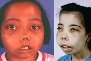 Cara Mengatasi Penyakit Thalasemia pada Anak
