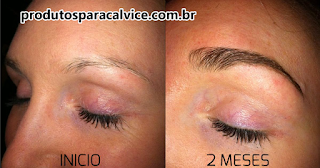 Minoxidil para sobrancelhas