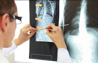 脊椎側彎背架, 脊椎度數,脊椎側彎矯正, 脊椎側彎治療