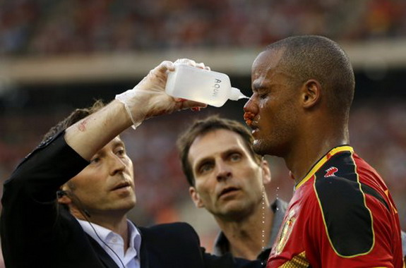 A Belgium offical assists Vincent Kompany after a collision with Serbia goalkeeper Vladimir Stojković