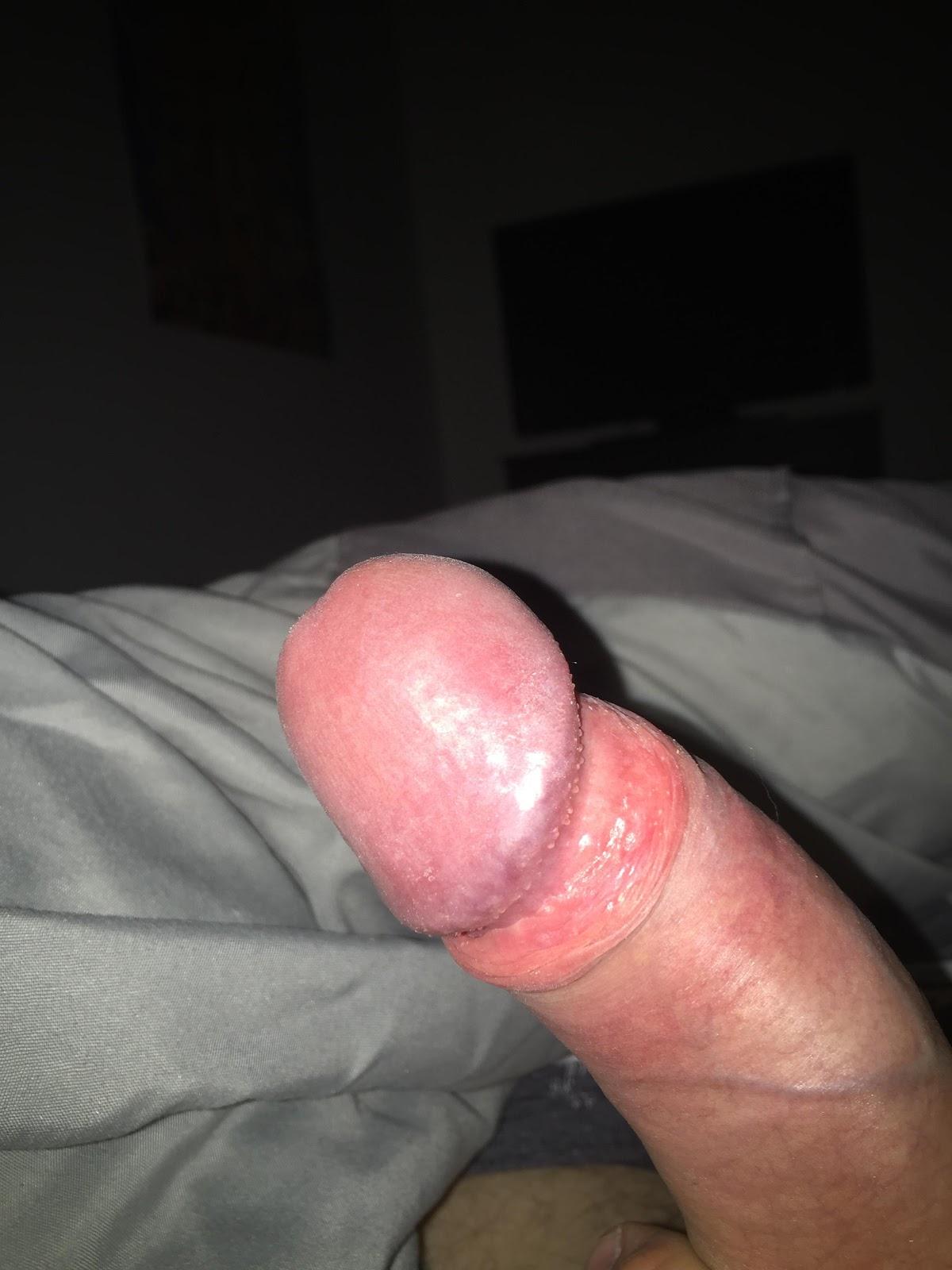 Frenulum breve sex