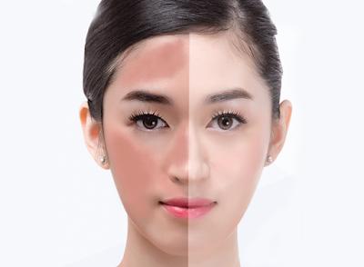 3 Cara Mencerahkan Wajah Secara Alami Dan Cepat Tanpa Efek Samping