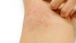 Beberapa Cara untuk Mencegah Timbulnya Alergi dingin