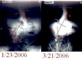 脊椎側彎, 脊椎側彎手術, 脊椎側彎矯正, 脊椎側彎開刀,脊椎側彎治療