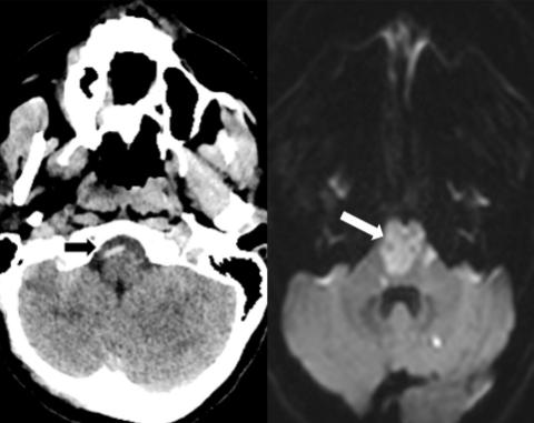 図:カイロプラティック 椎骨脳底動脈梗塞