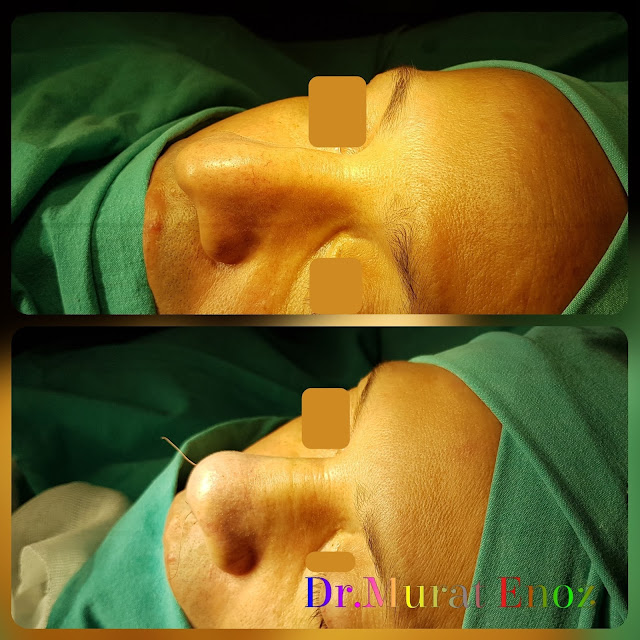 open technique nose tip plasty operation in men