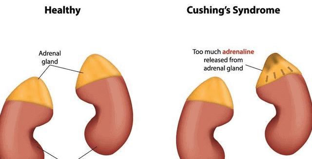 ما هي متلازمة كوشينغ وكيفية علاجها