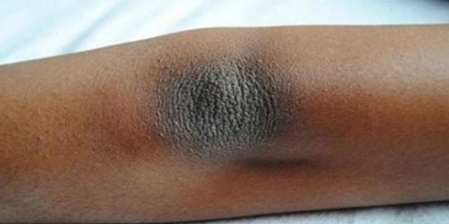 INILAH 3 Cara Mudah Menghapus Kulit Kering dan Warna Gelap di Siku dan Lutut