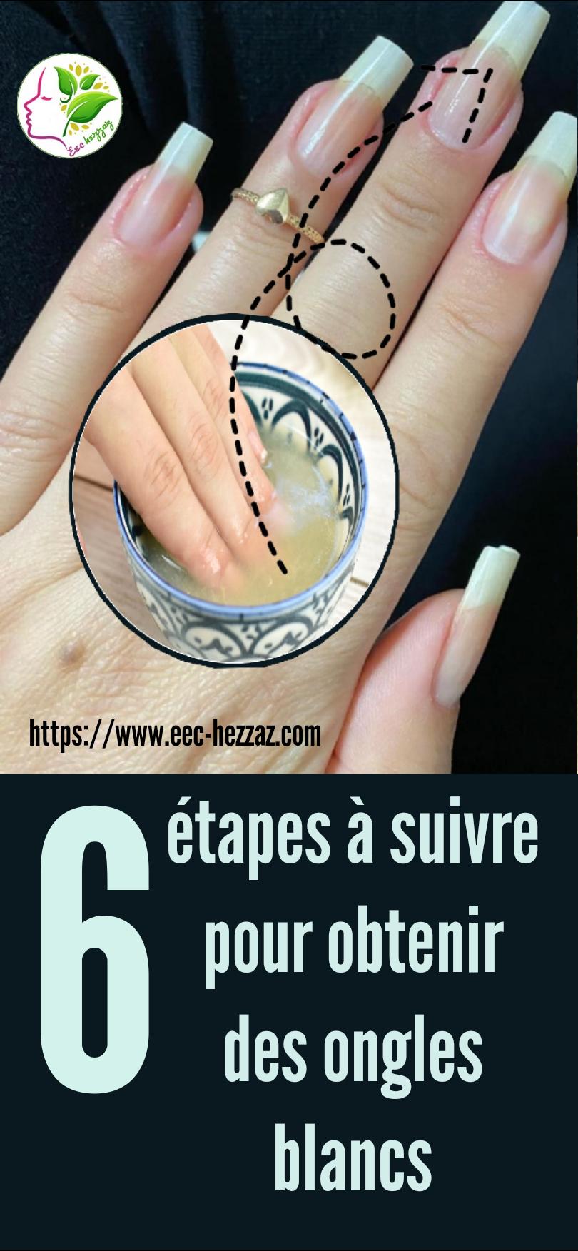 6 étapes à suivre pour obtenir des ongles blancs