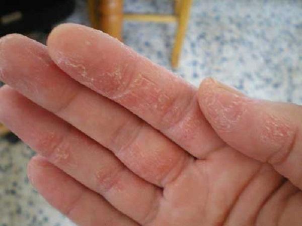 Tìm hiểu nguyên nhân gây bệnh chàm khô