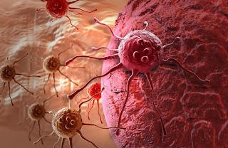 5 Makanan yang dapat Mencegah Kanker