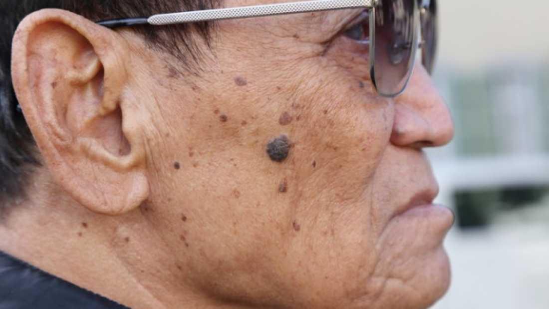 هل تحتاج لإجراء فحص سرطان الجلد؟