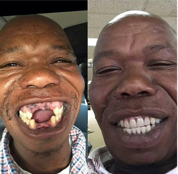 Wow! Toothless man gets perfect set of teeth | This Is ...