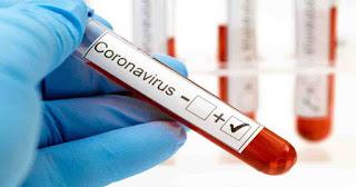 #CoronaVirus से एक महिला की मौत, नौ मरीज हुए ठीक, इतने की रिपोर्ट आयी पॉजिटिव | #NayaSaveraNetwork
